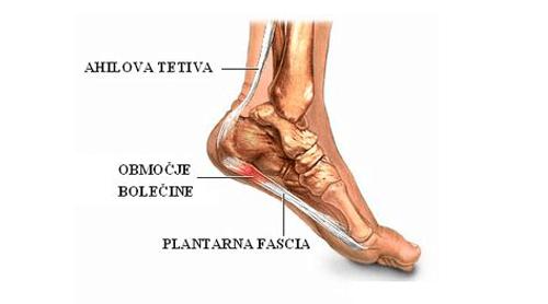 Začetniške poškodbe tekačev_plantarni fasciitis